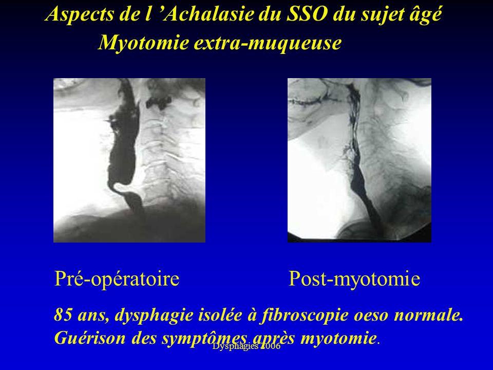 Aspects de l 'Achalasie du SSO du sujet âgé Myotomie extra-muqueuse