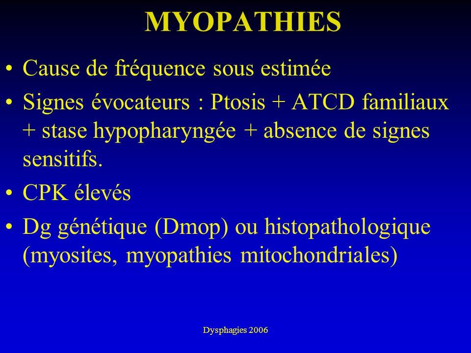 MYOPATHIES Cause de fréquence sous estimée