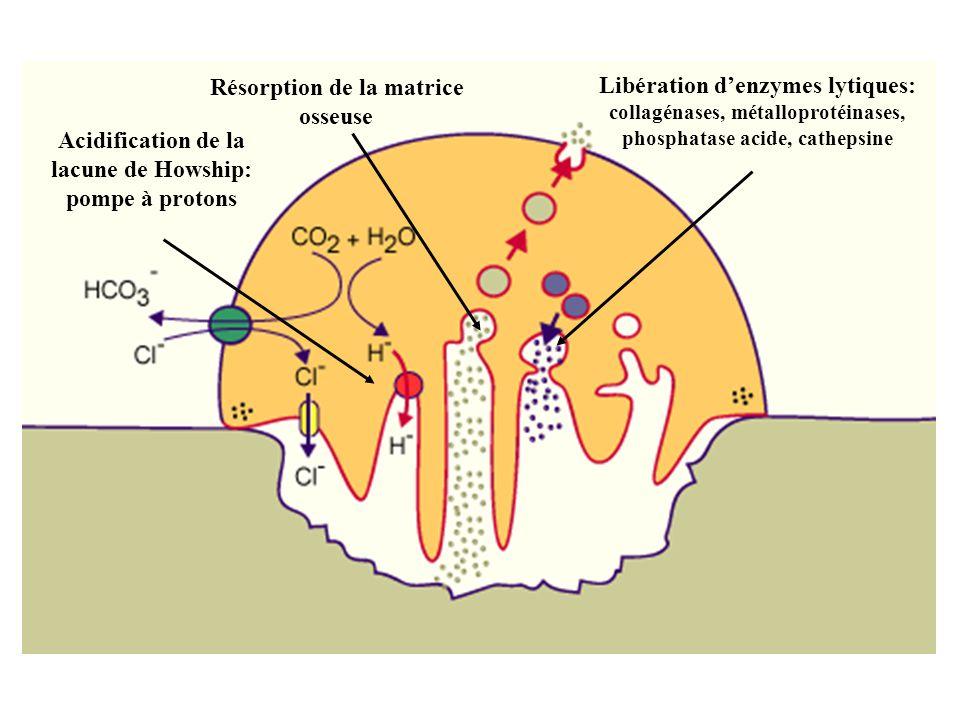 Résorption de la matrice osseuse Libération d'enzymes lytiques: