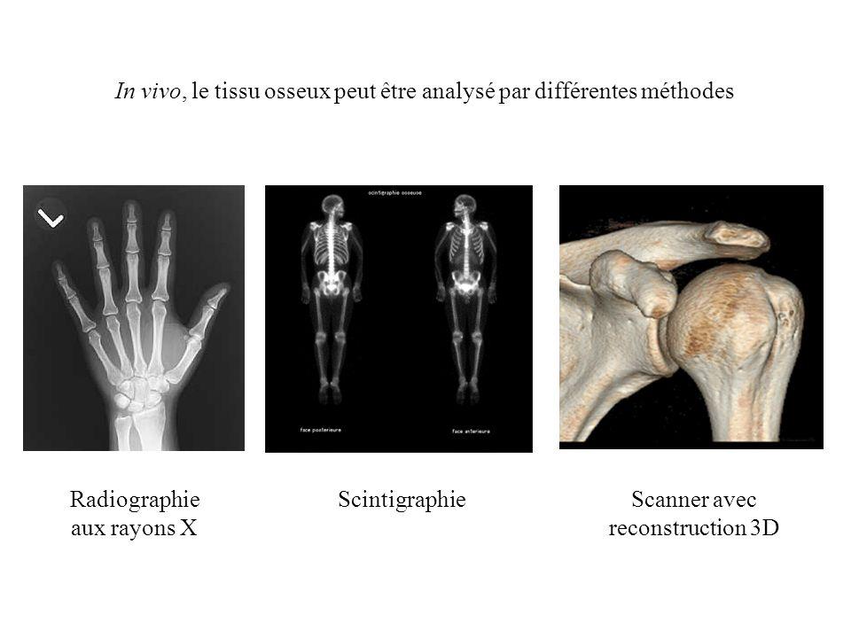 In vivo, le tissu osseux peut être analysé par différentes méthodes
