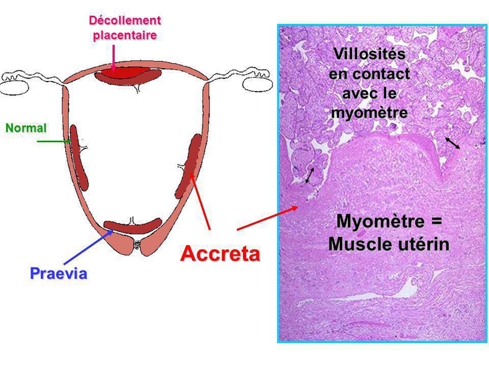 Accreta Myomètre = Muscle utérin