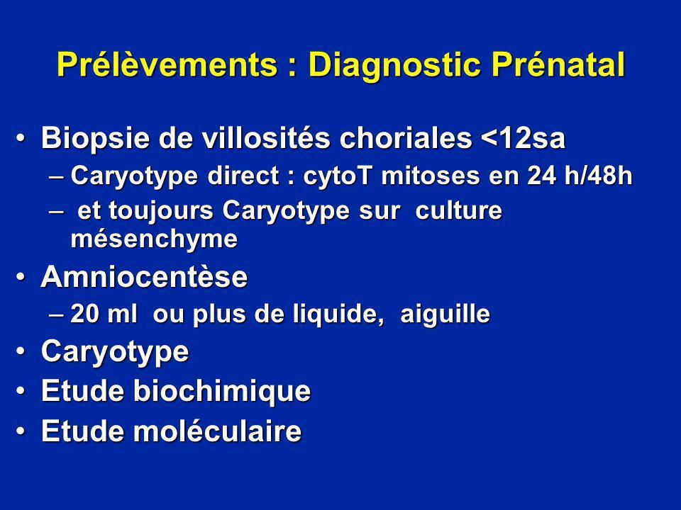 Prélèvements : Diagnostic Prénatal