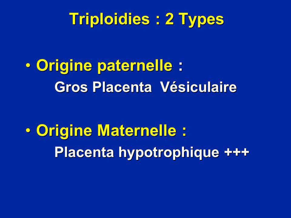 Triploidies : 2 Types Origine paternelle : Origine Maternelle :