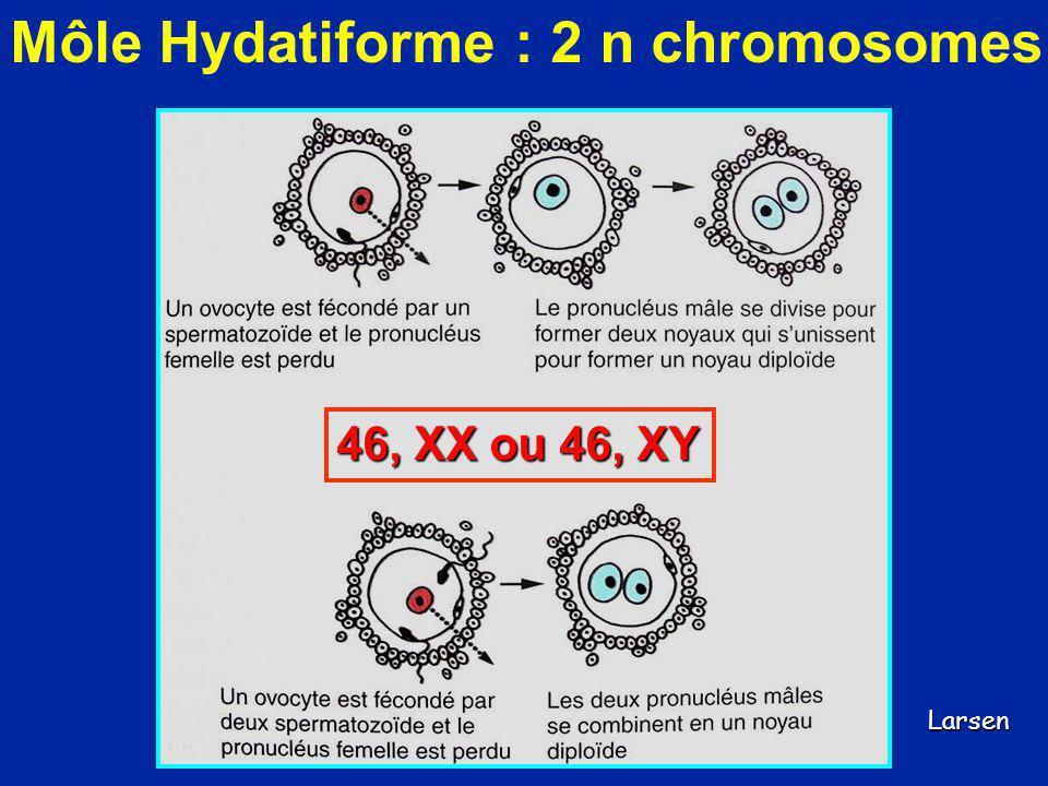 Môle Hydatiforme : 2 n chromosomes