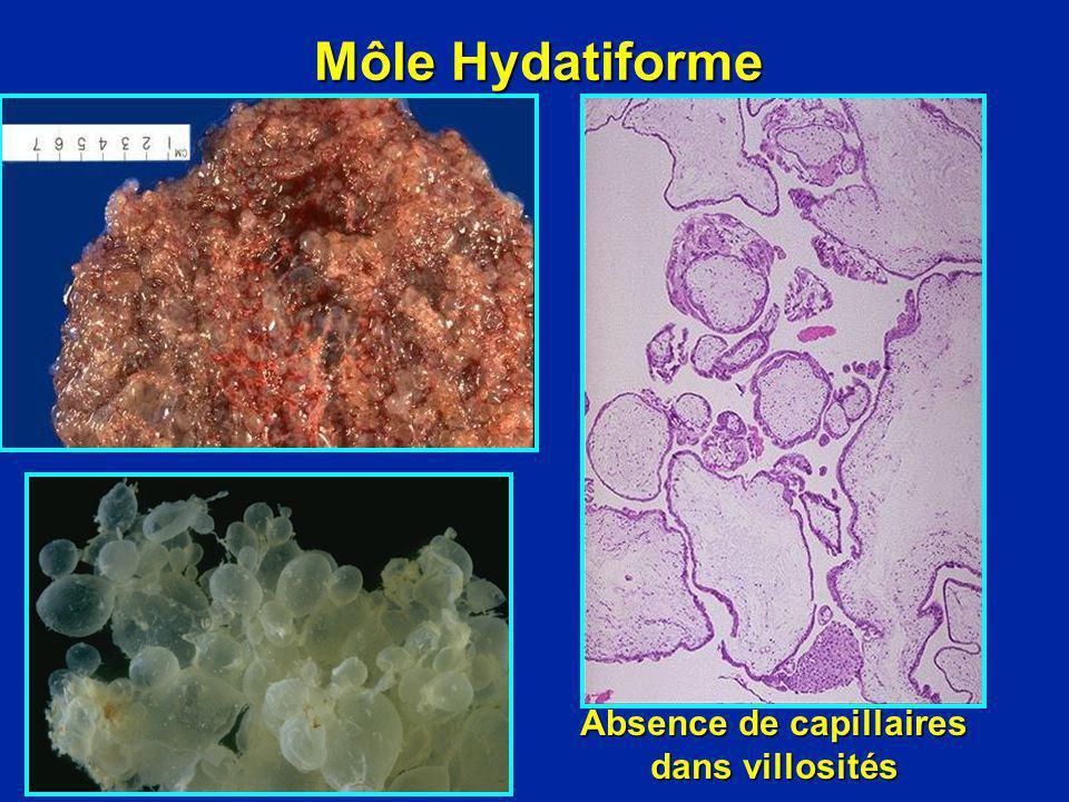 Absence de capillaires dans villosités
