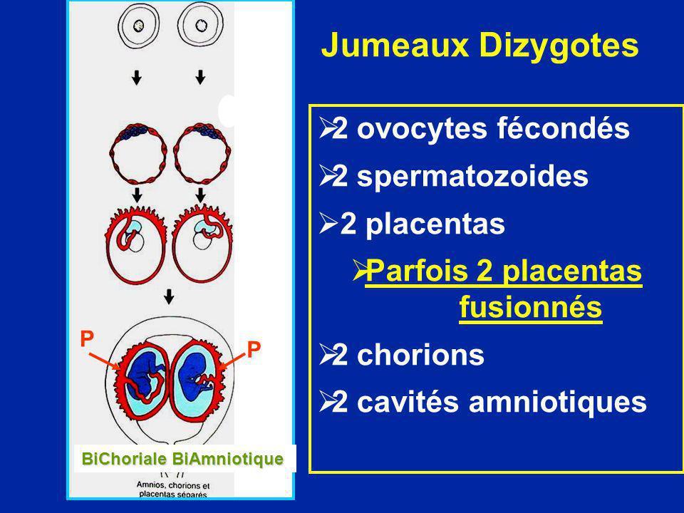 Parfois 2 placentas fusionnés