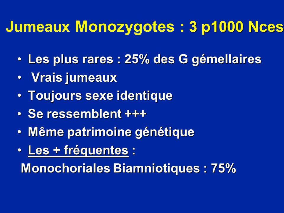 Jumeaux Monozygotes : 3 p1000 Nces