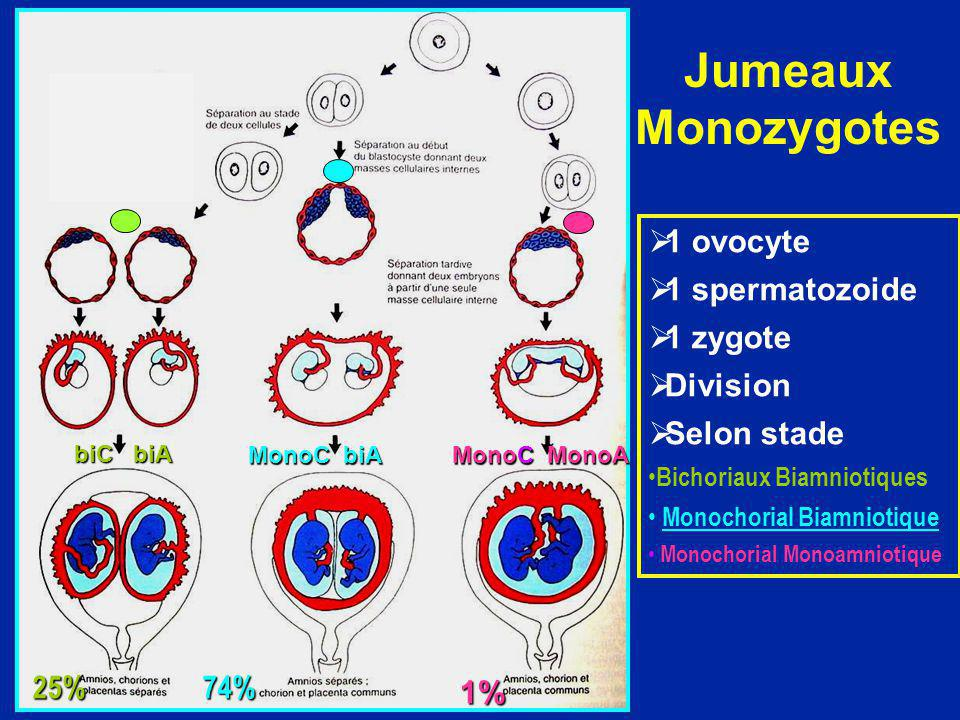 Jumeaux Monozygotes 1 ovocyte 1 spermatozoide 1 zygote Division