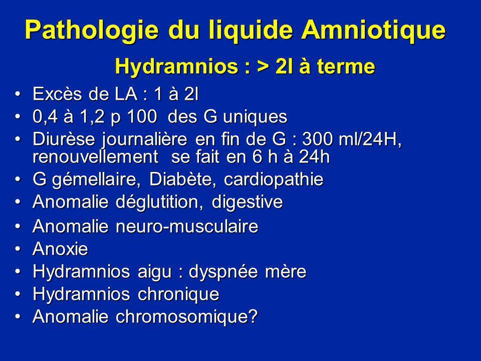 Pathologie du liquide Amniotique