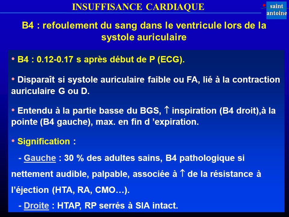 • B4 : 0.12-0.17 s après début de P (ECG).