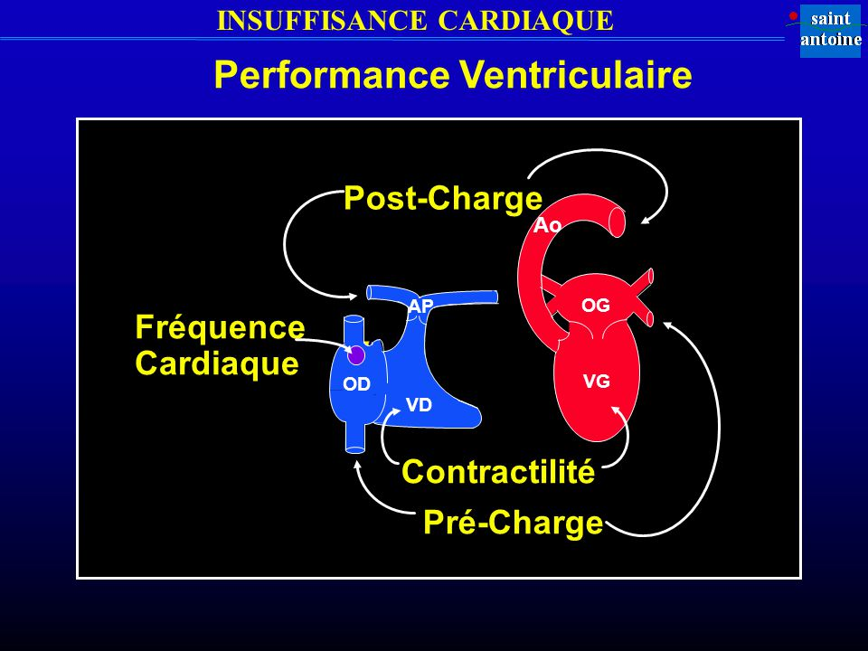 Performance Ventriculaire