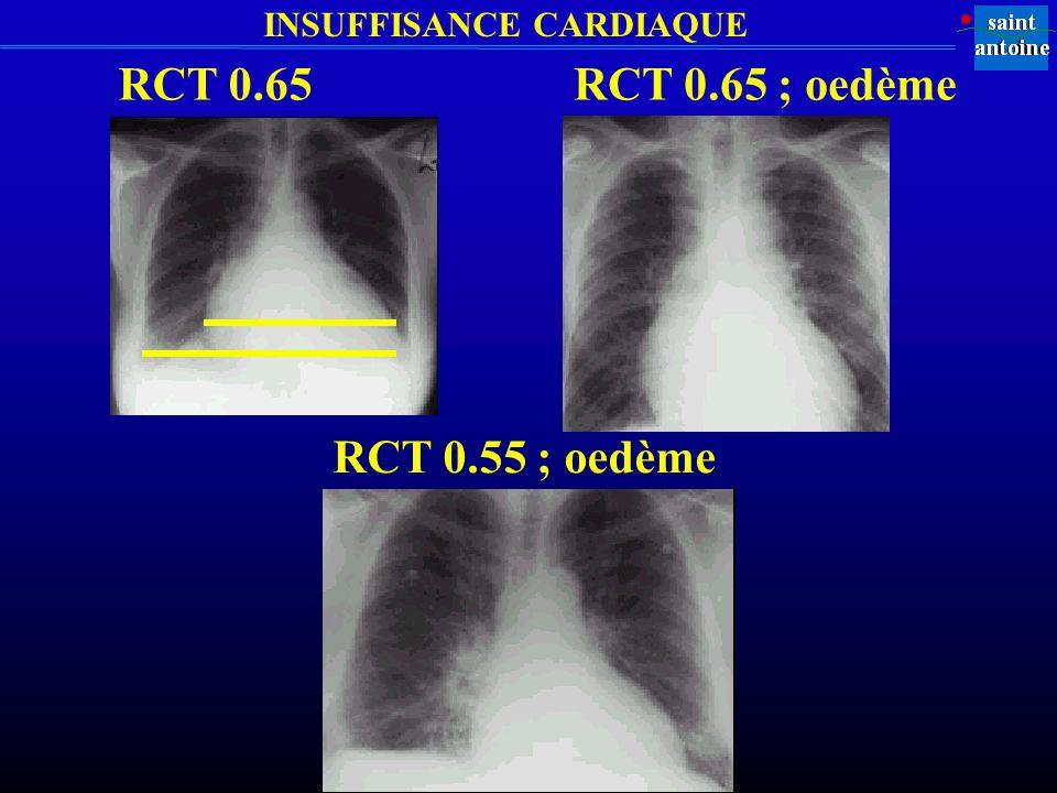 RCT 0.65 RCT 0.65 ; oedème RCT 0.55 ; oedème