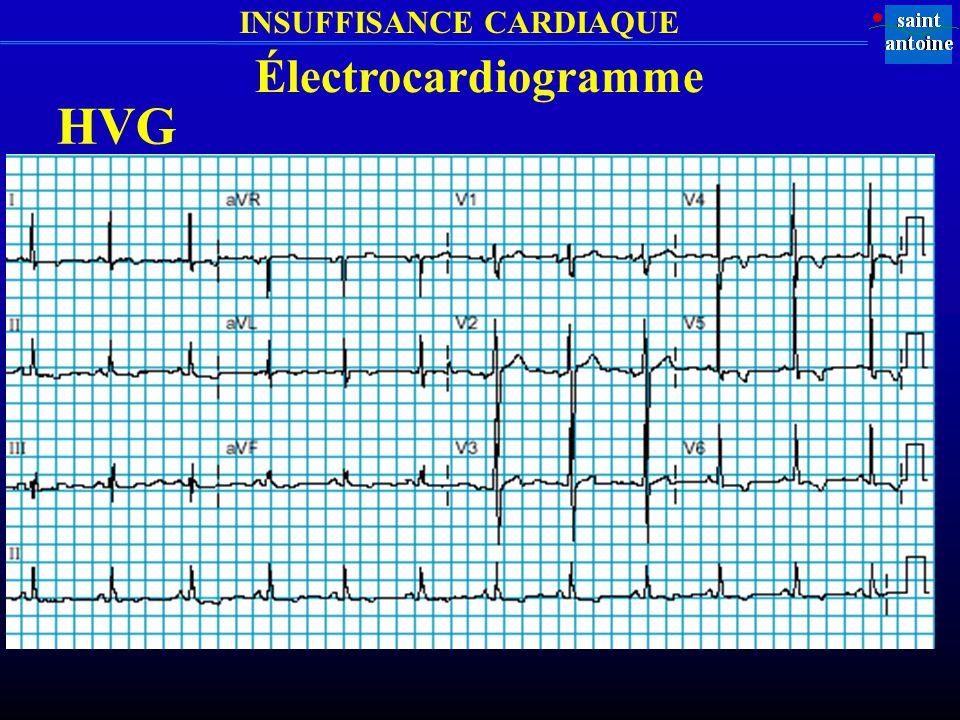 Électrocardiogramme HVG