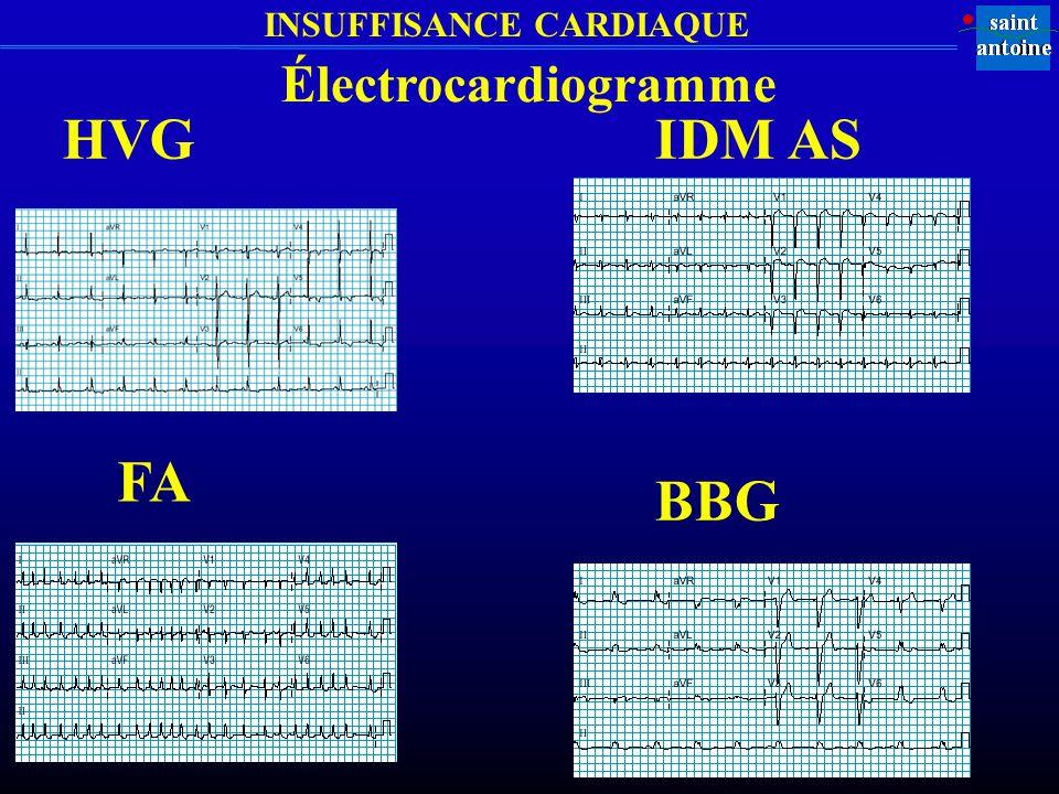 Électrocardiogramme HVG IDM AS FA BBG
