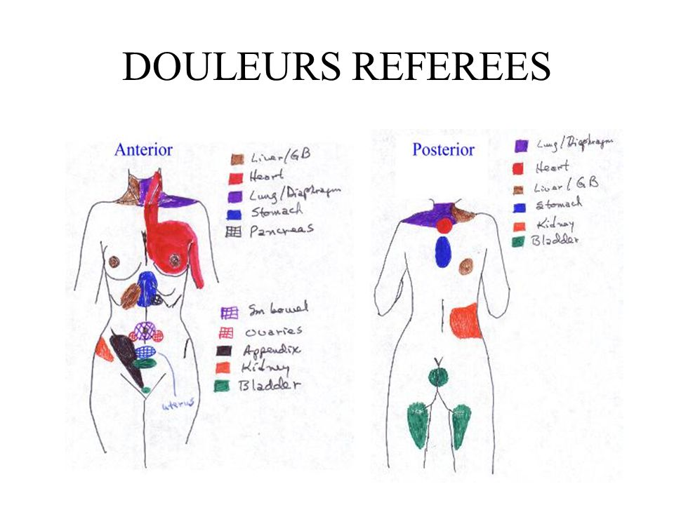 DOULEURS REFEREES