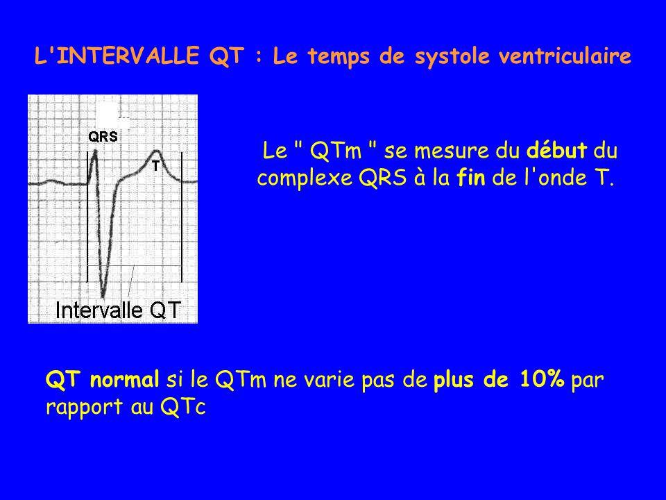 L INTERVALLE QT : Le temps de systole ventriculaire