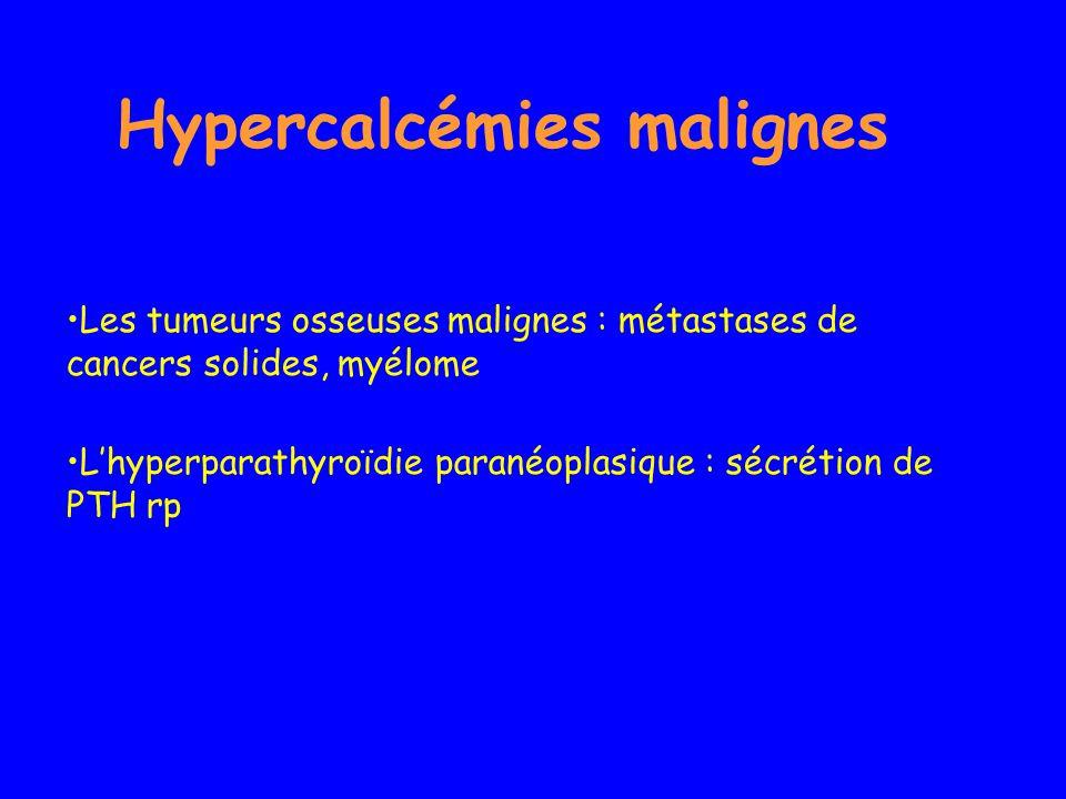 Hypercalcémies malignes