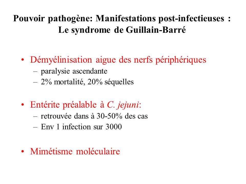 Démyélinisation aigue des nerfs périphériques