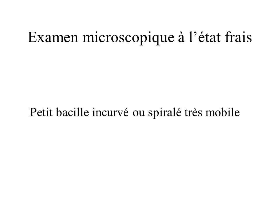 Examen microscopique à l'état frais