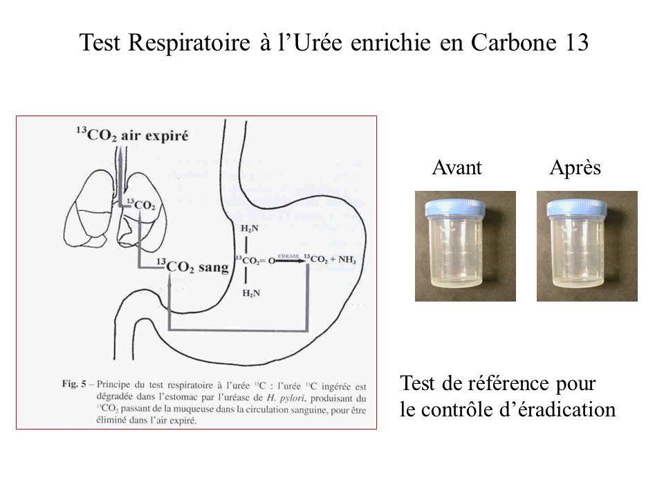 Test Respiratoire à l'Urée enrichie en Carbone 13