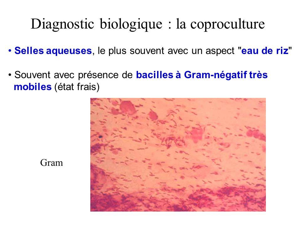 Diagnostic biologique : la coproculture