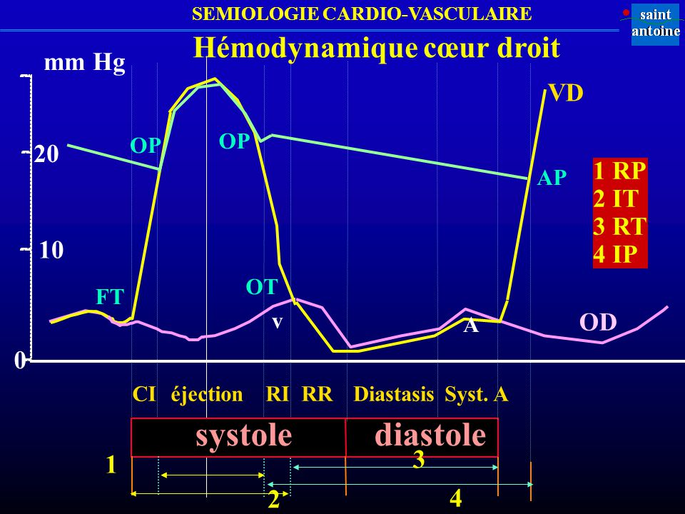 Hémodynamique cœur droit