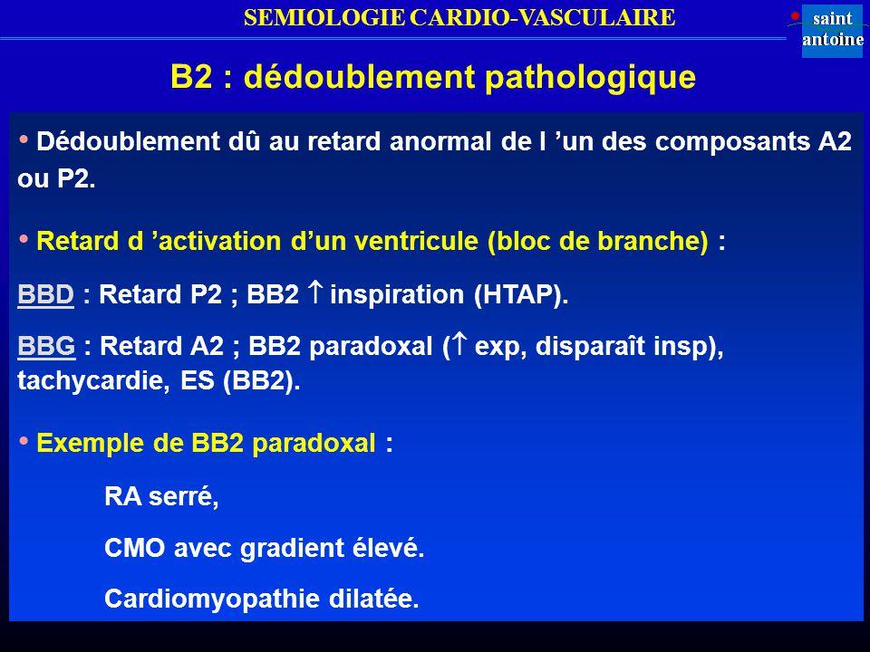 B2 : dédoublement pathologique