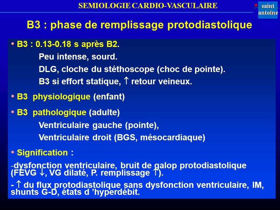 B3 : phase de remplissage protodiastolique