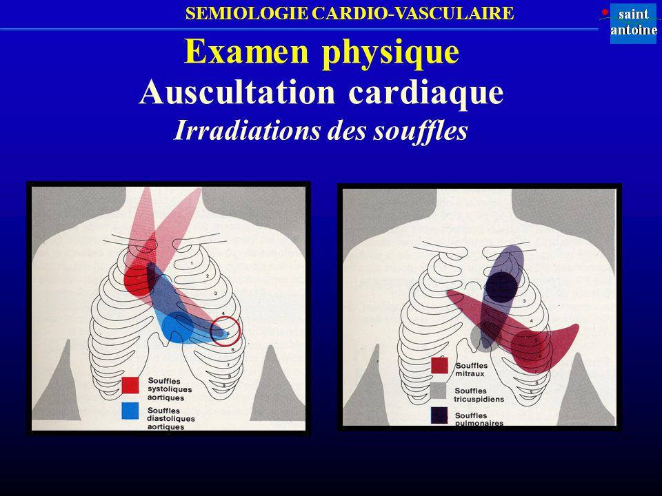 Auscultation cardiaque Irradiations des souffles