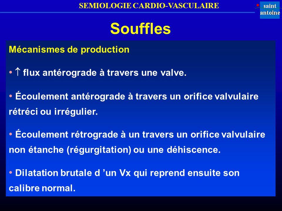 Souffles •  flux antérograde à travers une valve.
