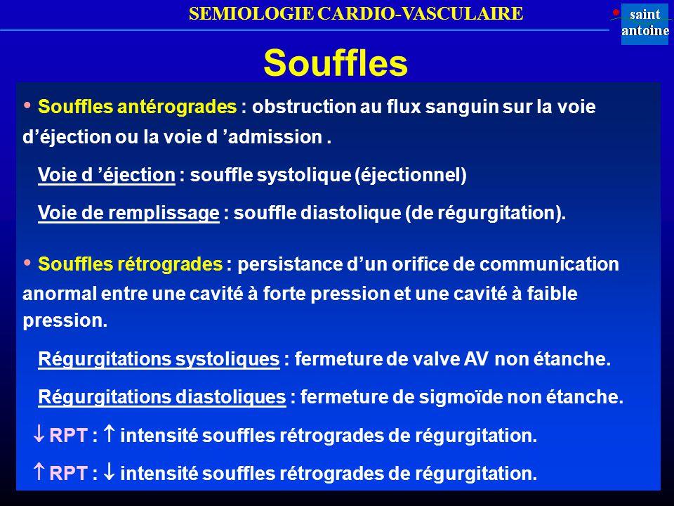 Souffles • Souffles antérogrades : obstruction au flux sanguin sur la voie d'éjection ou la voie d 'admission .