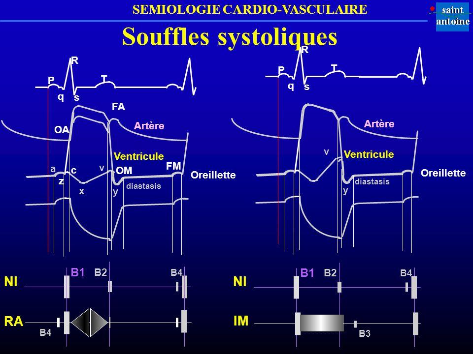 Souffles systoliques Nl Nl RA IM B1 B1 R R P T P T q s q s FA Artère