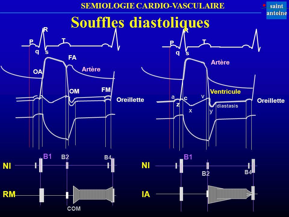 Souffles diastoliques