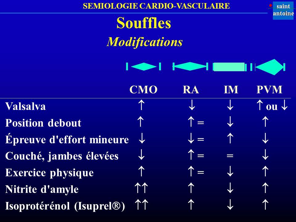 Souffles Modifications CMO RA IM PVM