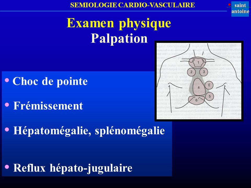 • Hépatomégalie, splénomégalie • Reflux hépato-jugulaire