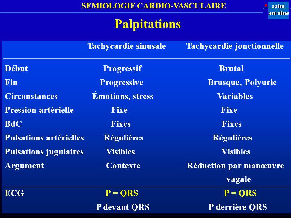 Palpitations Tachycardie sinusale Tachycardie jonctionnelle