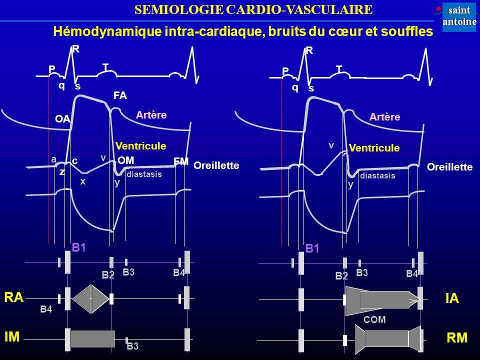 Hémodynamique intra-cardiaque, bruits du cœur et souffles