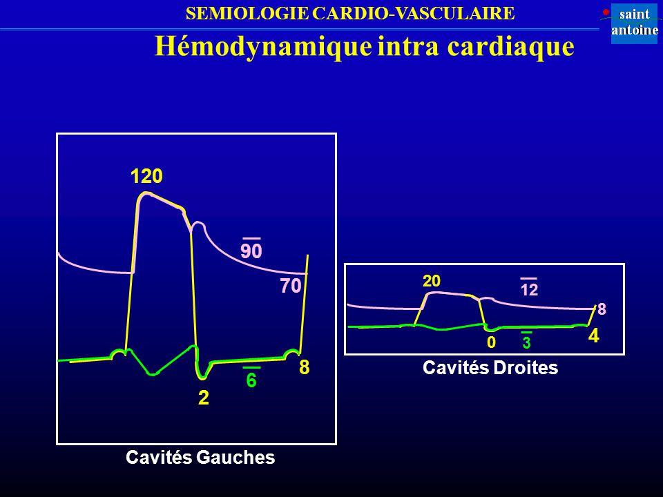 Hémodynamique intra cardiaque