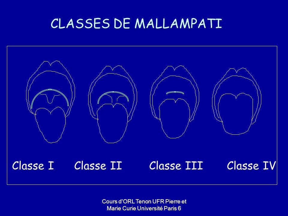 CLASSES DE MALLAMPATI Classe I Classe II Classe III Classe IV