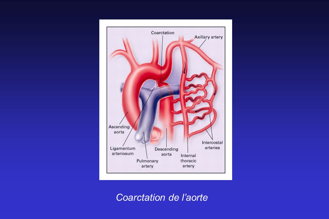 Coarctation de l'aorte