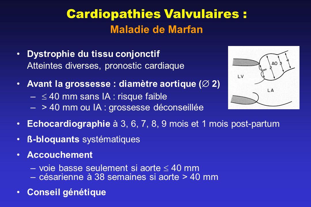 Cardiopathies Valvulaires :