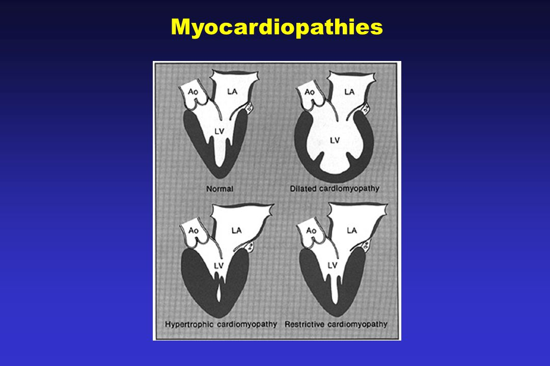 Myocardiopathies