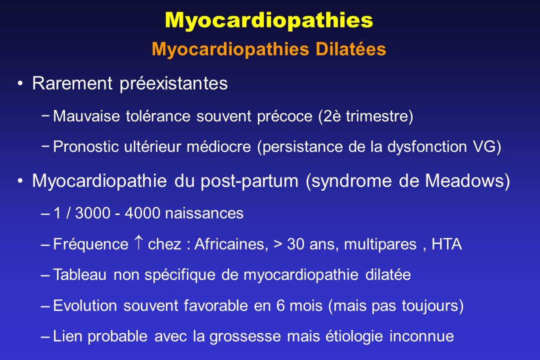 Myocardiopathies Dilatées