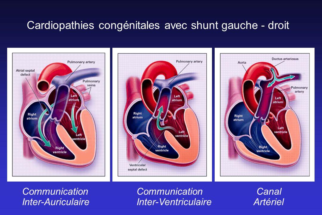 Cardiopathies congénitales avec shunt gauche - droit