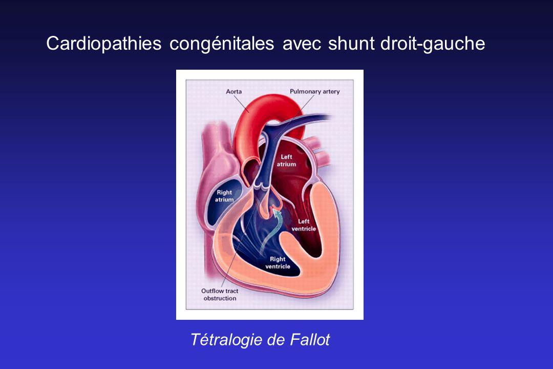 Cardiopathies congénitales avec shunt droit-gauche