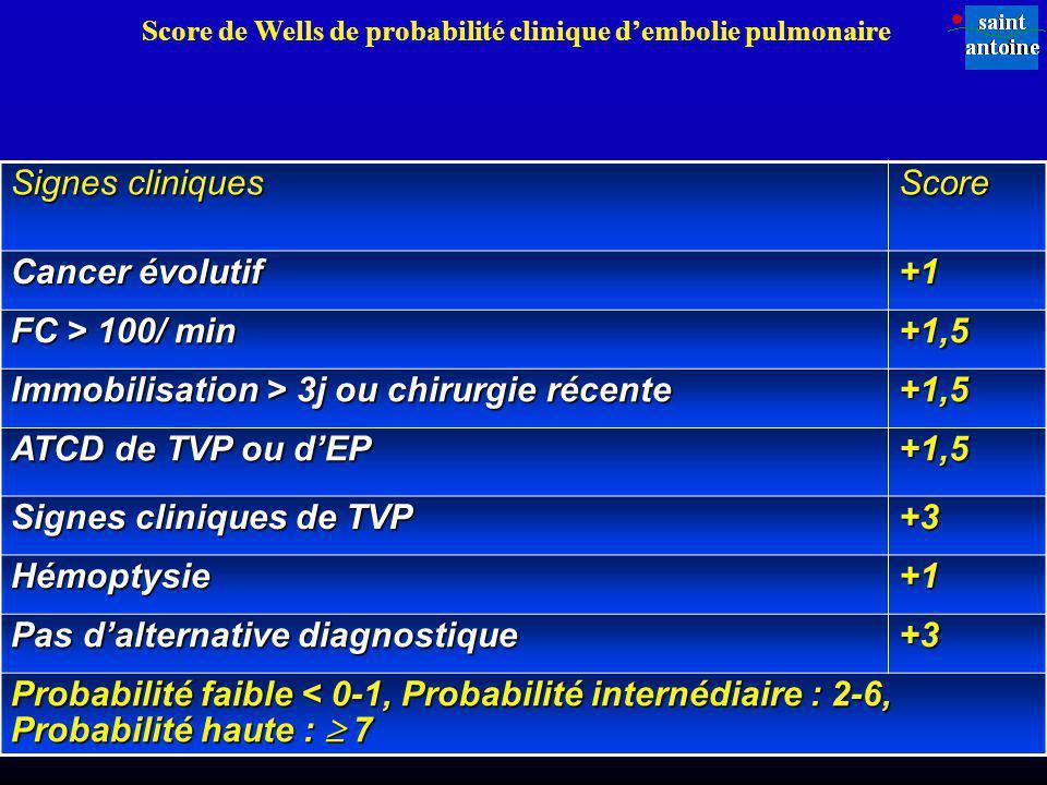 Score de Wells de probabilité clinique d'embolie pulmonaire