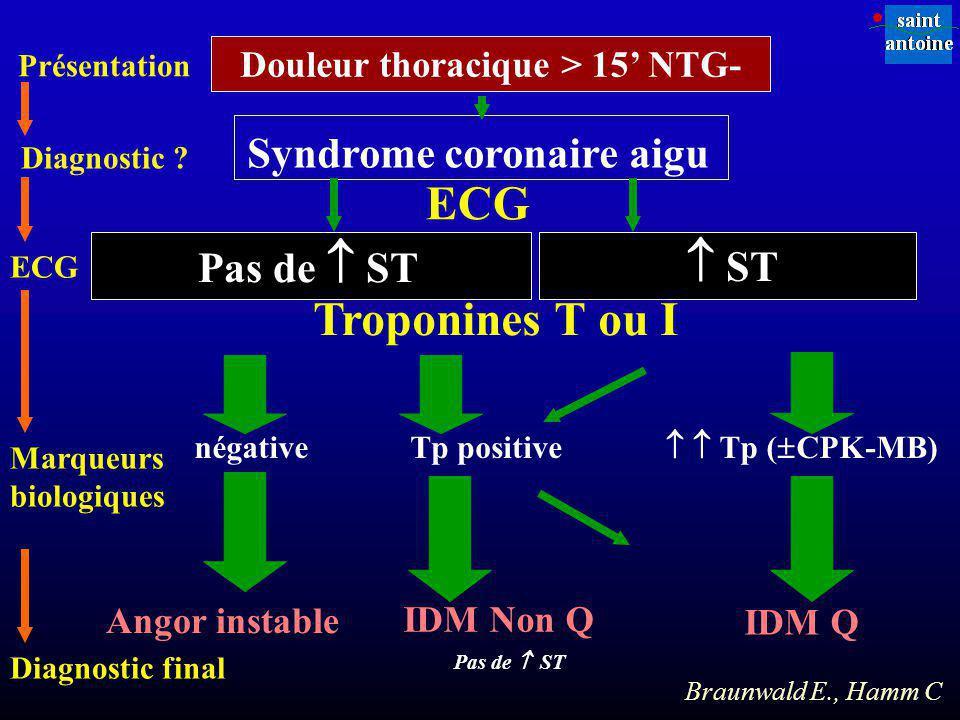 Douleur thoracique > 15' NTG- Syndrome coronaire aigu