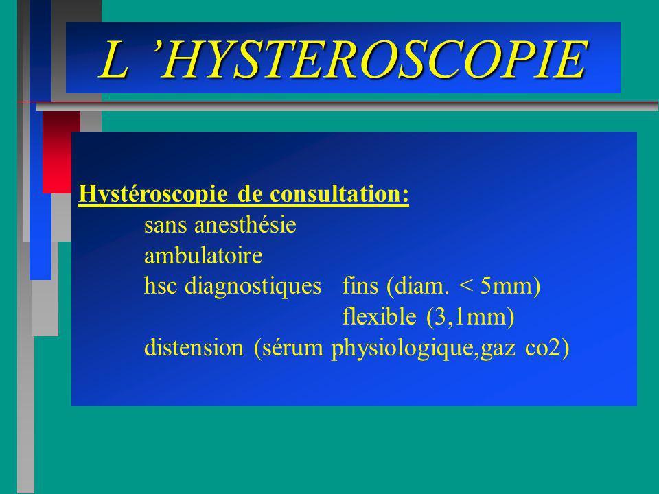 L 'HYSTEROSCOPIE Hystéroscopie de consultation: sans anesthésie