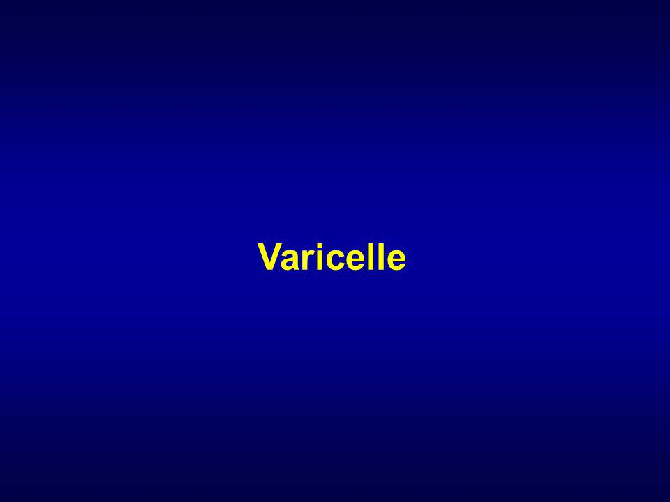Varicelle