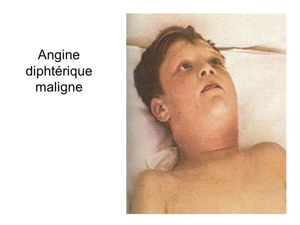 Angine diphtérique maligne